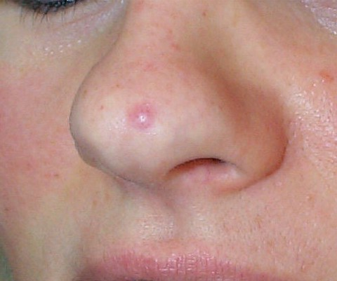 Scrotum dans la bouche