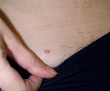 papillomavirus et verrues seborrheiques)