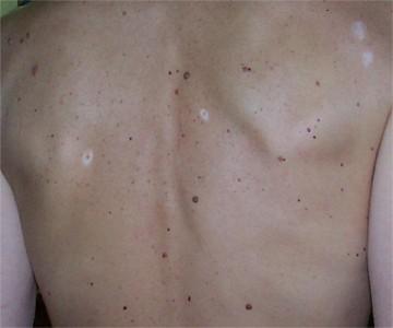 Léloignement des taches de pigment sur la personne bodyaga